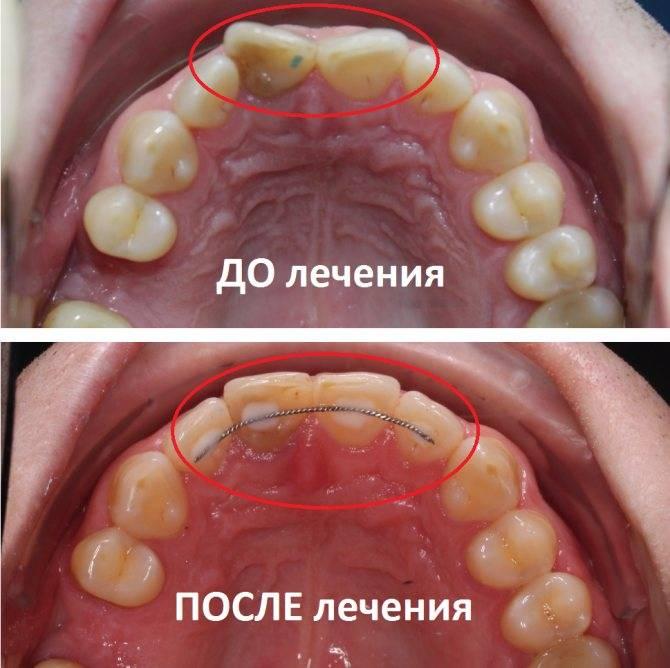 Зубная боль при установке и ношении брекетов