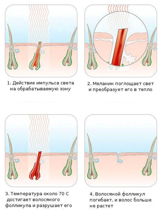 Кул-эпиляция — это уникальный и безболезненный способ удаления ненужных волос , не затрагивая кожу