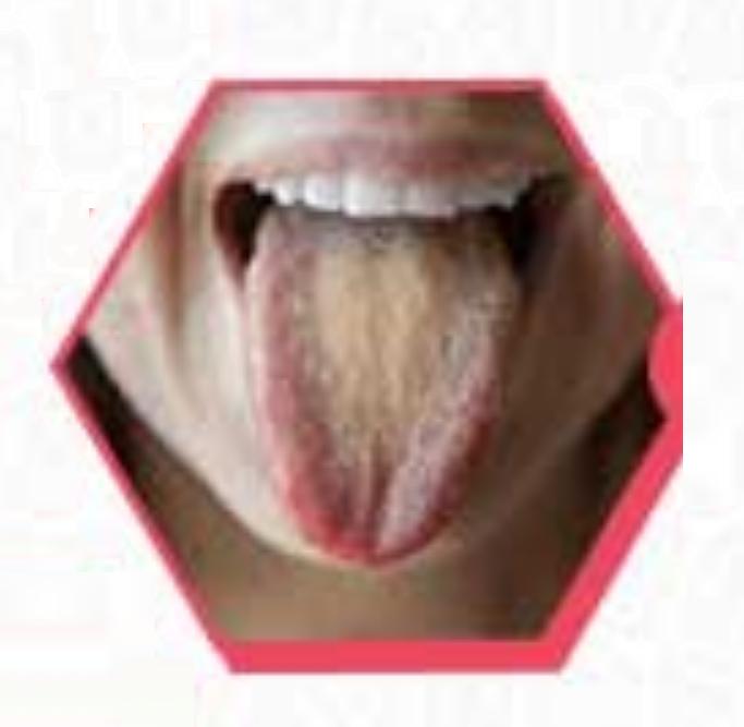 Как избавиться от налета на языке