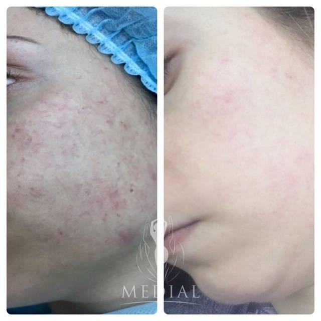 Удаление сосудов на лице лазером: отзывы, описание процедуры, противопоказания. купероз на лице: причины и лечение