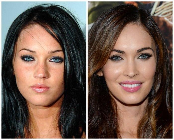 Звезды делавшие пластические операции: фото до и после