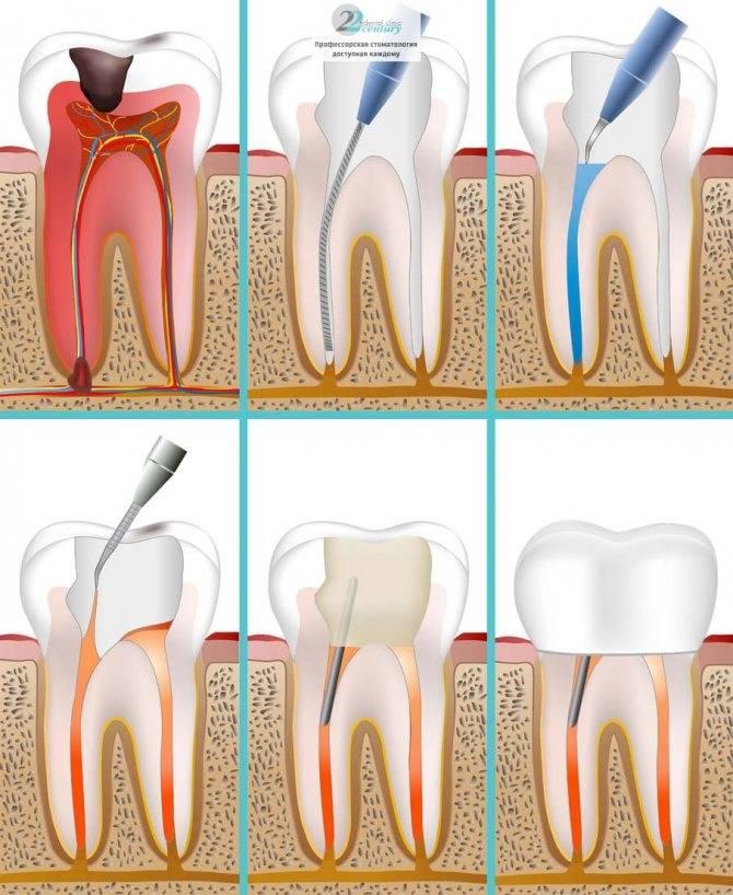 Важно всегда помнить о своих зубах! обострение хронического пульпита: стадии и лечение