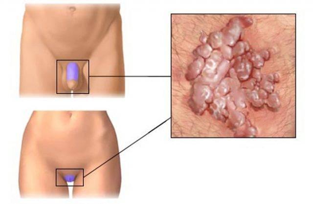 К какому врачу обратиться для лечения папилломы?