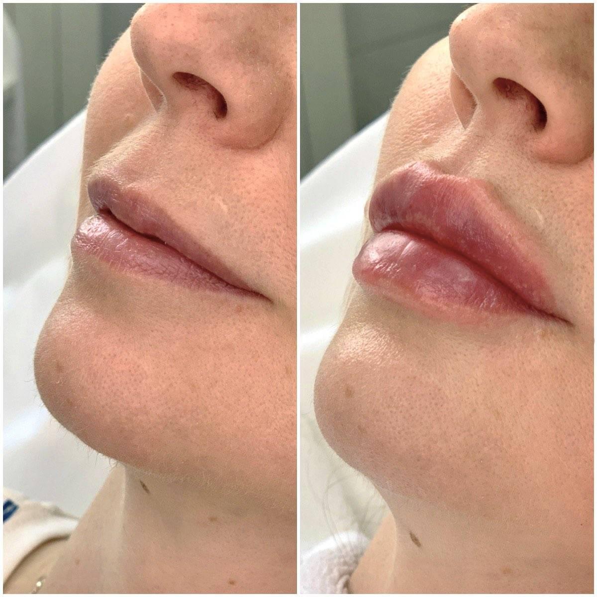 Инъекции красоты: особенности применения филлеров в лоб и описание основных препаратов