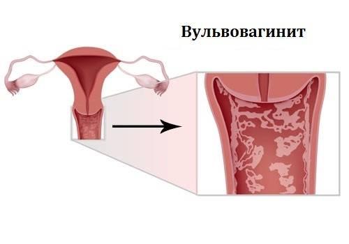 Зуд и жжение в интимной зоне перед месячными – основные причины дискомфорта
