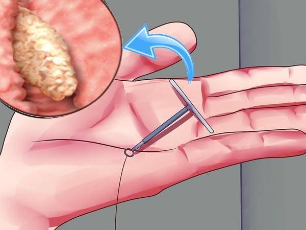 Как проходит удаление полипа в мочевом пузыре: 3 вида операции, последствия хирургического вмешательства