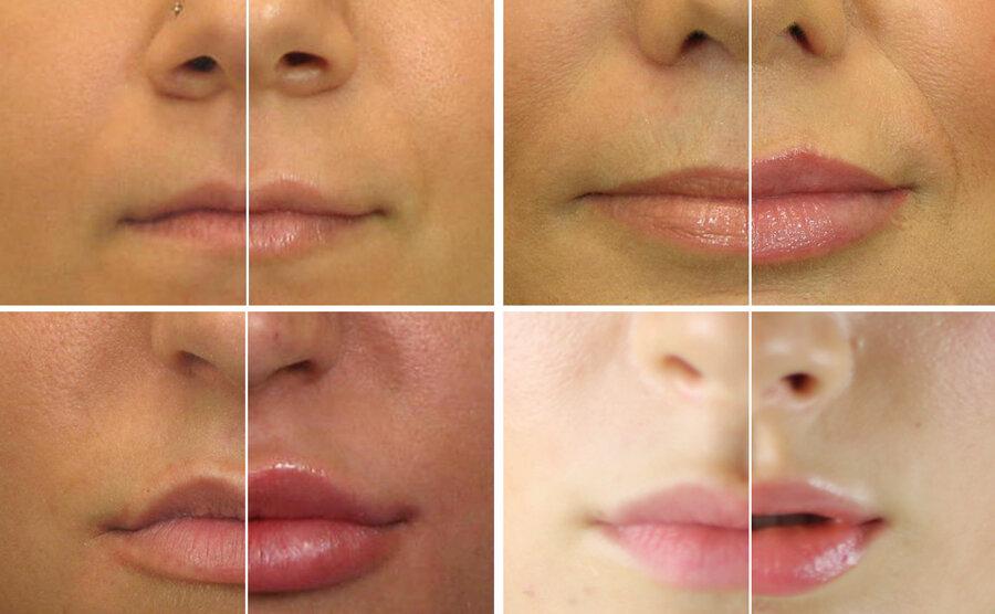 Парижские губы – техники увеличения губ гиалуроновой кислотой