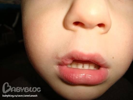 Чем помазать губу ребенку после ушиба