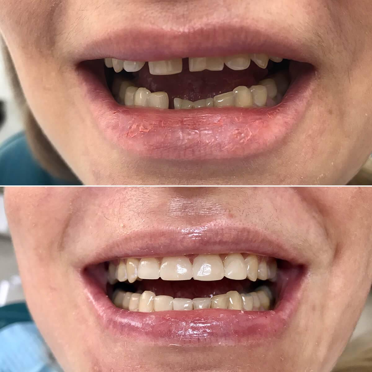 Виниры на зубы, плюсы и минусы, особенности установки