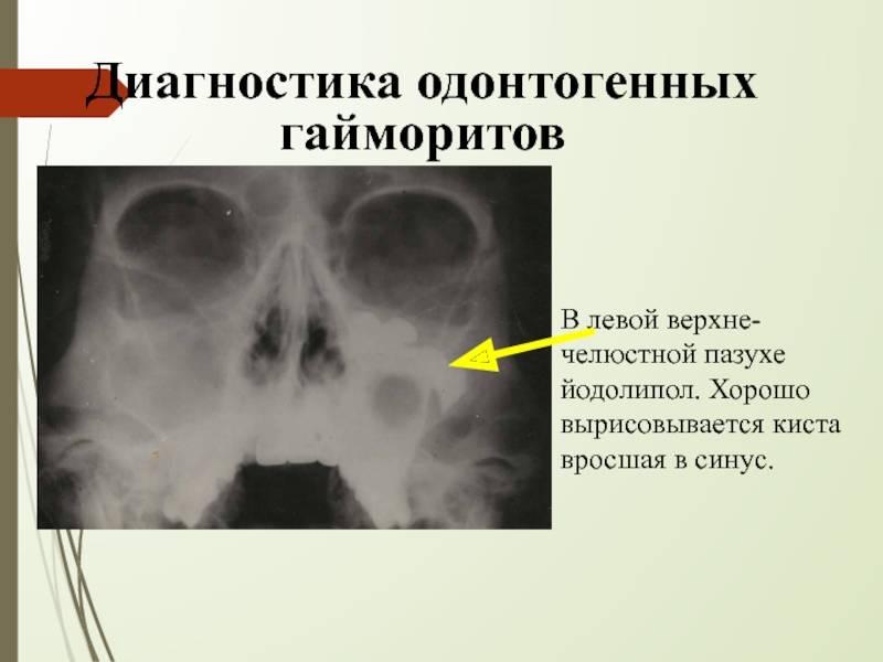 Возможно ли лечение кисты верхнечелюстной (гайморовой) пазухи без операции