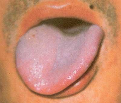 Откуда появляются болячки на тканях языка