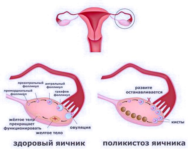 Поликистоз яичников и беременность: сначала лечимся, затем планируем