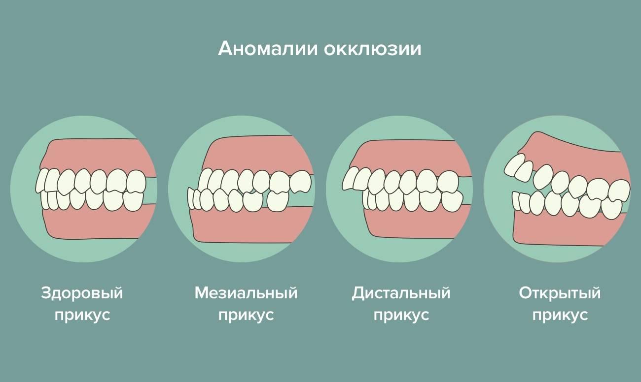 Аномалии размеров и формы зубов (макродентия и микродентия)