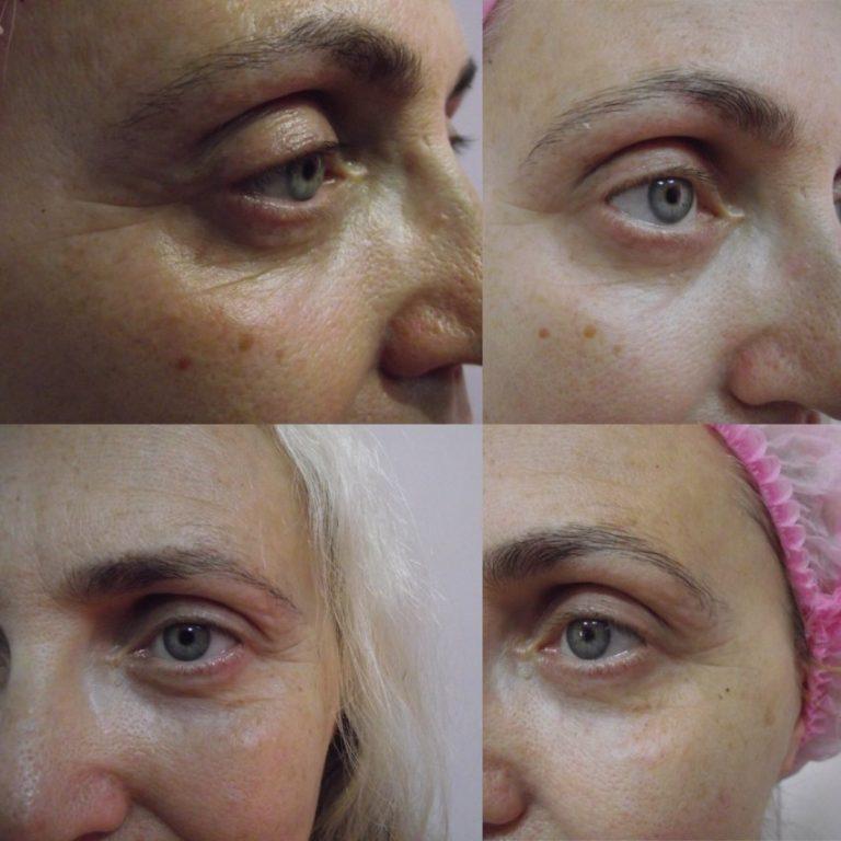 Карбокситерапия лица