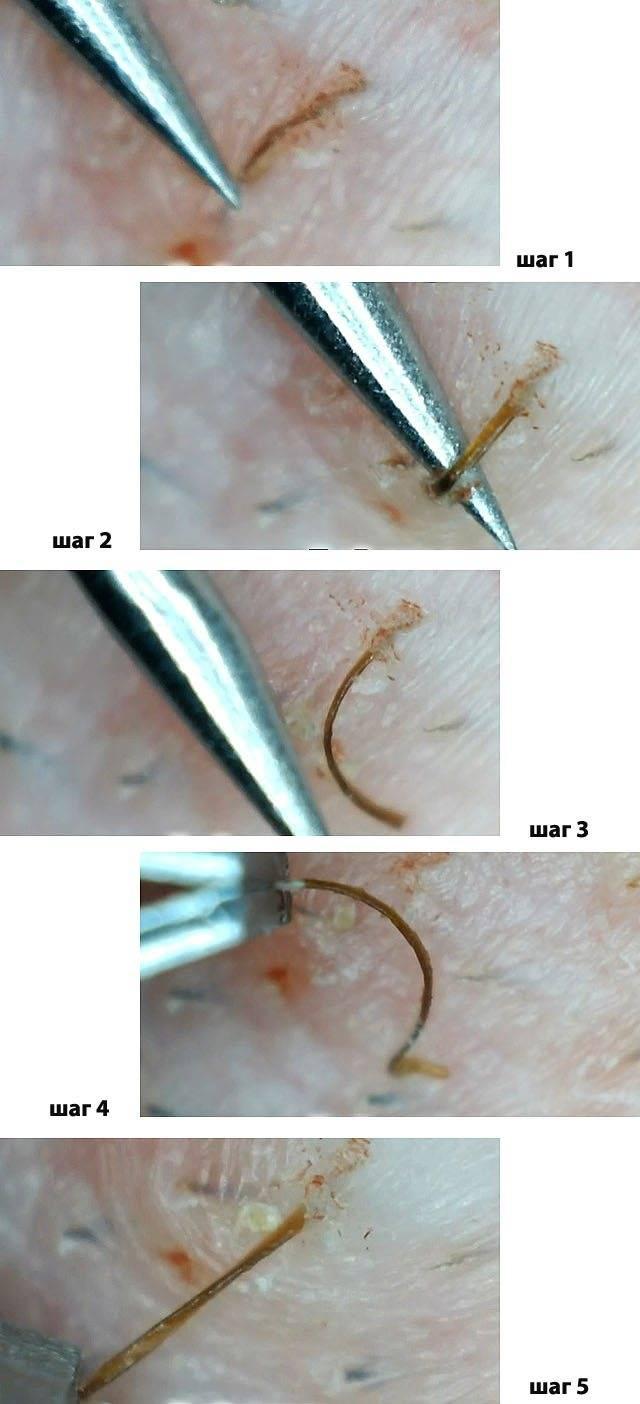 Как избавиться от пятен после вросших волос на ногах и в интимной зоне