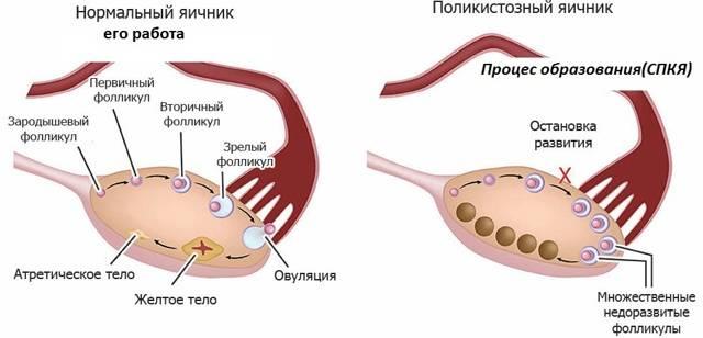 Что такое кистозное изменение яичников причины симптомы его лечение
