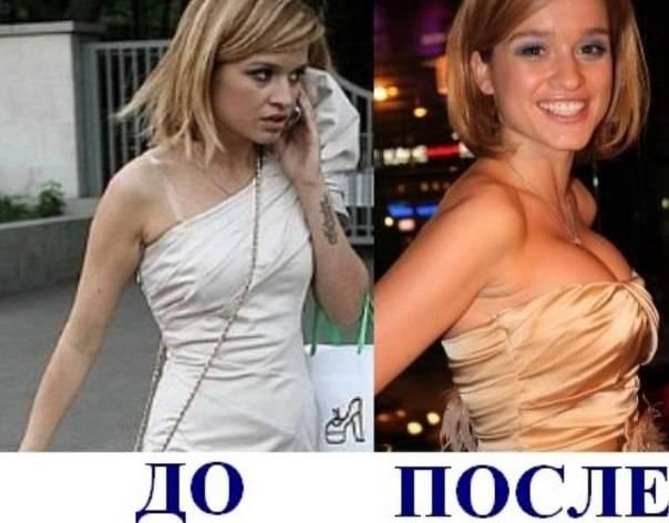 До и после: как поменялись российские инстаграм-звезды, сделав пластику