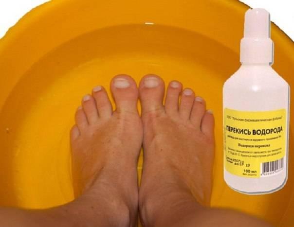 Сухие пятки. как увлажнять и лечить кожу пяток и стоп в домашних условиях