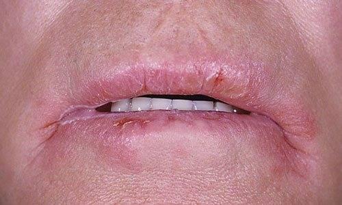 Почему появляются заеды в уголках губ, и как от них можно избавиться