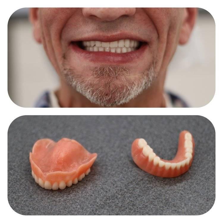Как и чем отбелить зубной протез в домашних условиях?