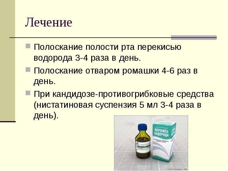 Полоскать десны содой и солью