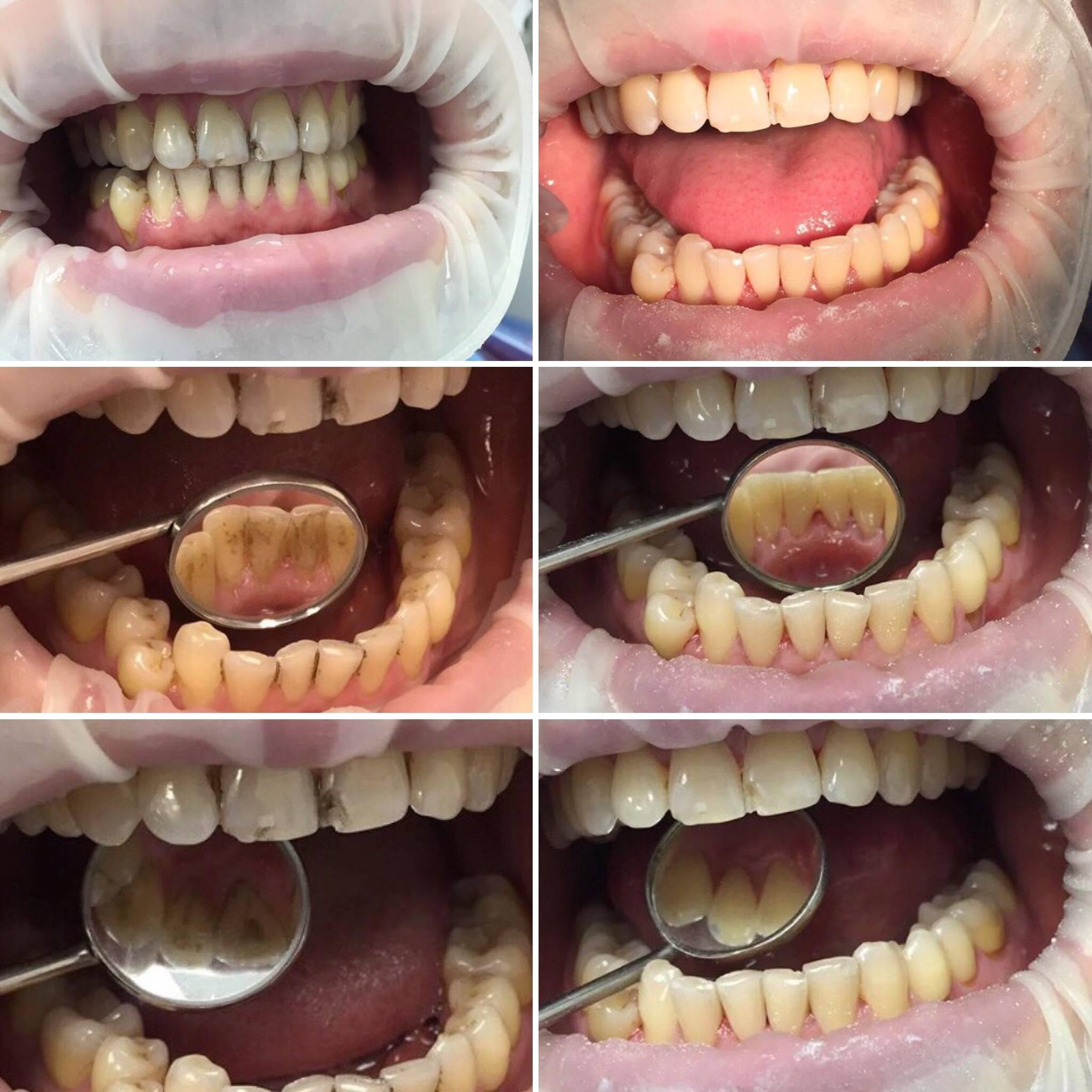 Профессиональная гигиена полости рта: инструменты и средства, противопоказания для проведения процедуры