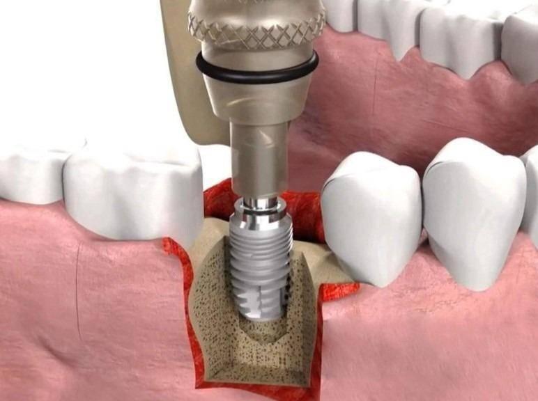 Импланты зубов: вред и польза, противопоказания к их установке, отзывы