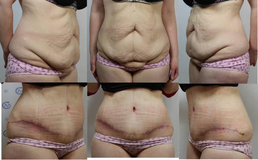 Восстановление после полостной операции, гинекологической. питание, гимнастика, реабилитация