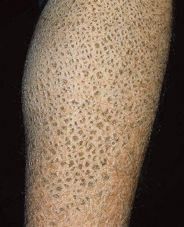 Утолщение кожи (гиперкератоз) встречается как патология или косметический дефект