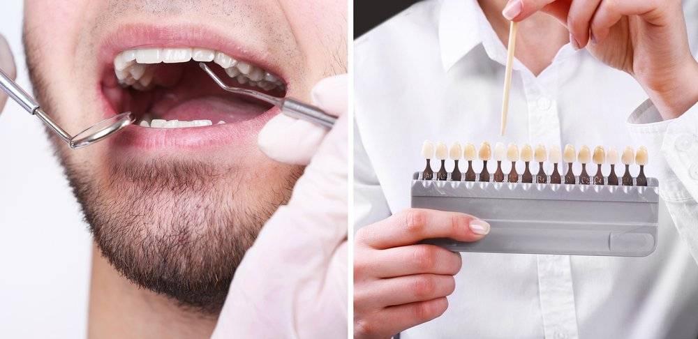 Отбеливание зубов: плюсы и минусы процедуры, в зависимости от метода