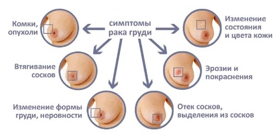 Характер, причины, диагностика дискомфорта в груди и возможные заболевания