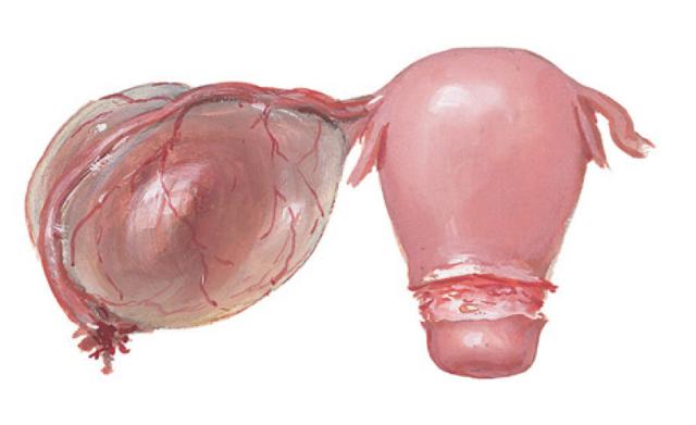 Образование кисты в правом яичнике: диагностика и основная симптоматика