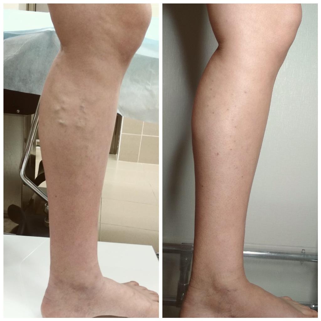 После операции вен ног картинки