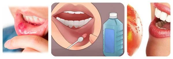 Герпетический стоматит у детей: причины, симптомы, способы лечения