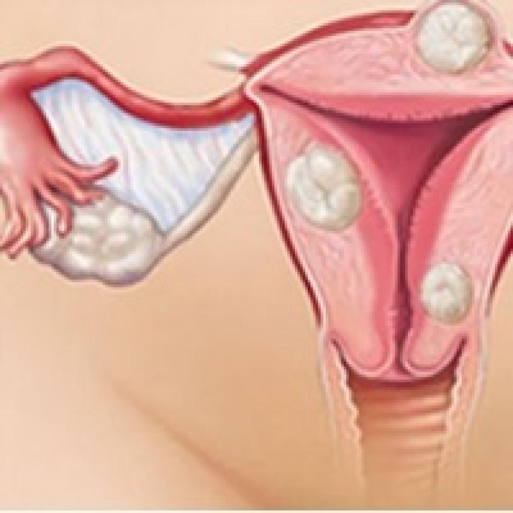 Как действует магнитотерапия при миоме матки?