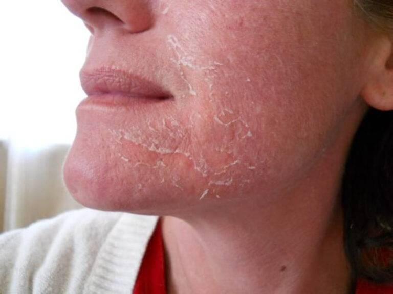 Причины возникновения и лечение аллергии вокруг рта