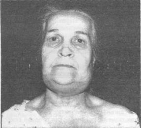 Гнилостно-некротическая флегмона дна полости рта, или ангина людвига