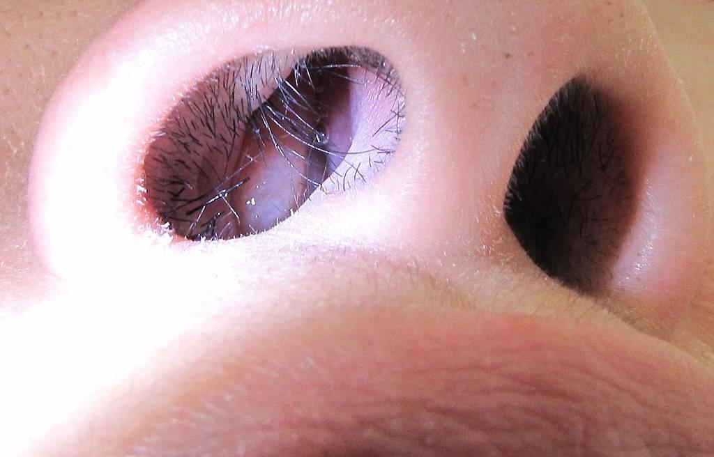 Лечение полипов в носу с помощью народных средств