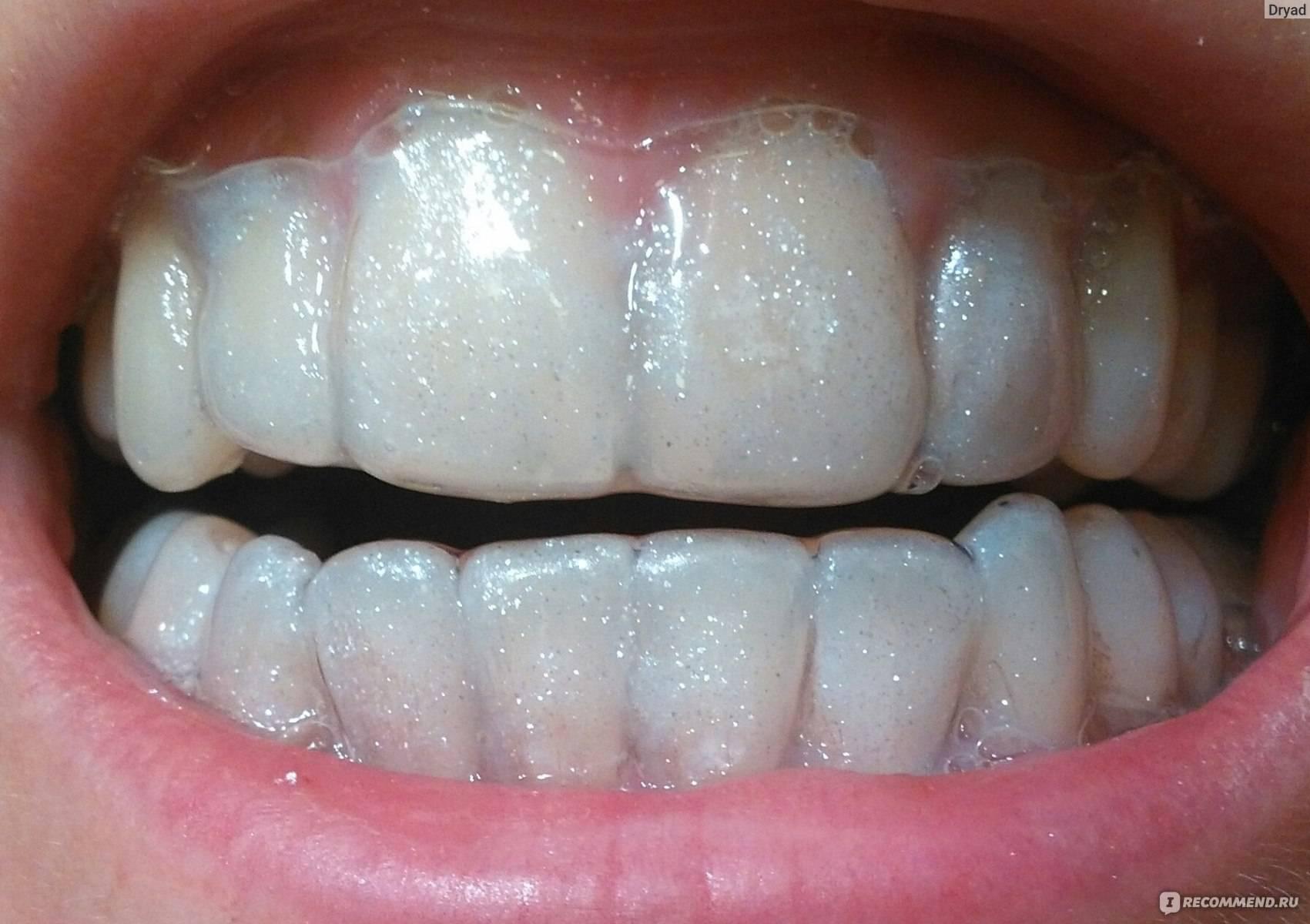 Действенные способы по укреплению эмали зубов у стоматолога