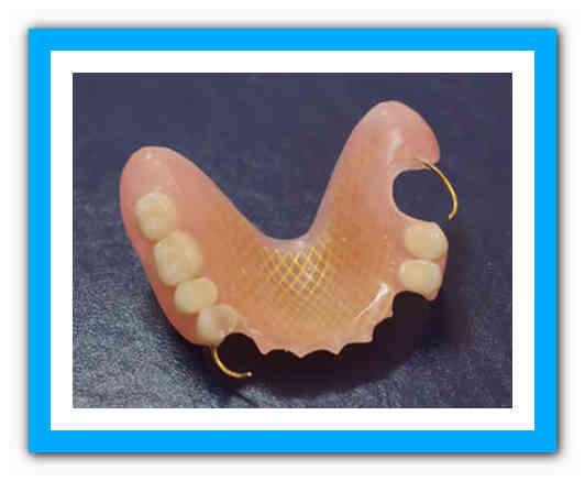 Обзор зубных протезов на присосках — на один или несколько зубов: виды, фото, цены