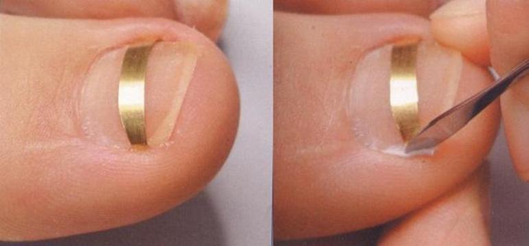 Операция по удалению вросшего ногтя: методы, проведение, результат