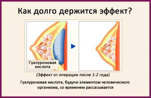 Можно ли с помощью уколов гиалуроновой кислоты увеличить грудные железы