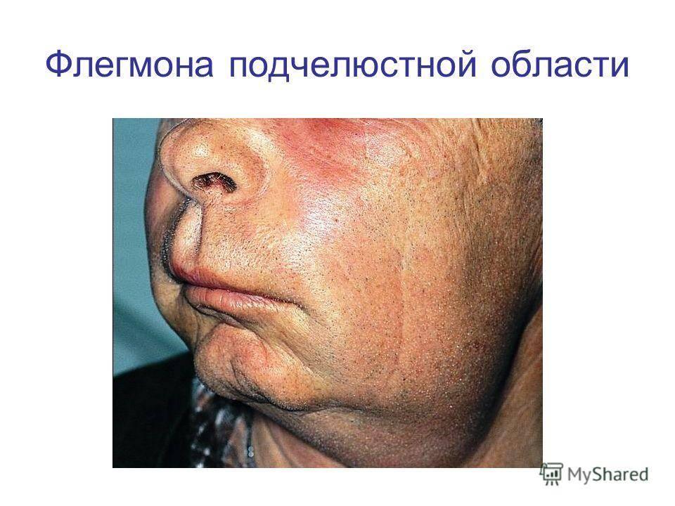 Флегмона полости рта: понятие, причины, симптомы, лечение