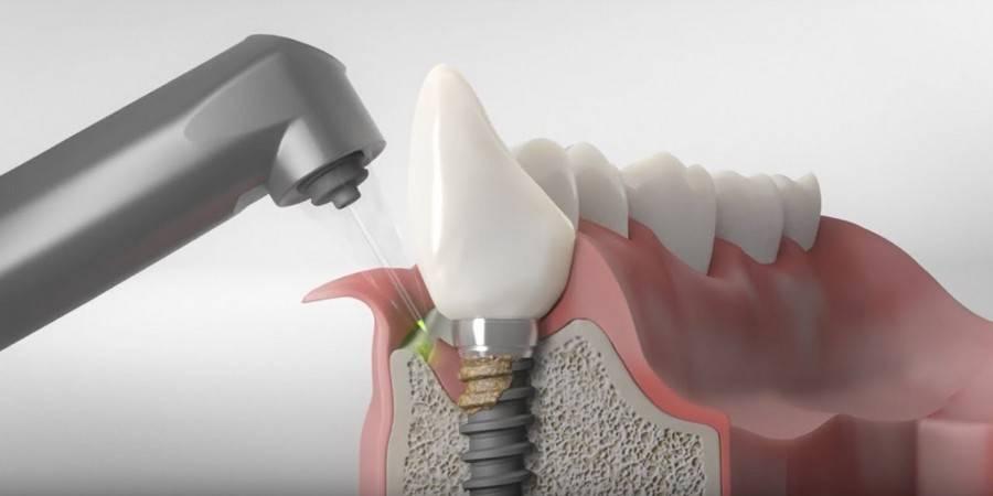 Как избежать отторжения имплантатов?
