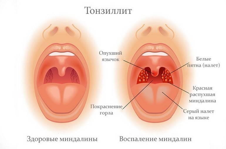 Как выглядят, причины, симптомы и лечение тонзиллитных пробок