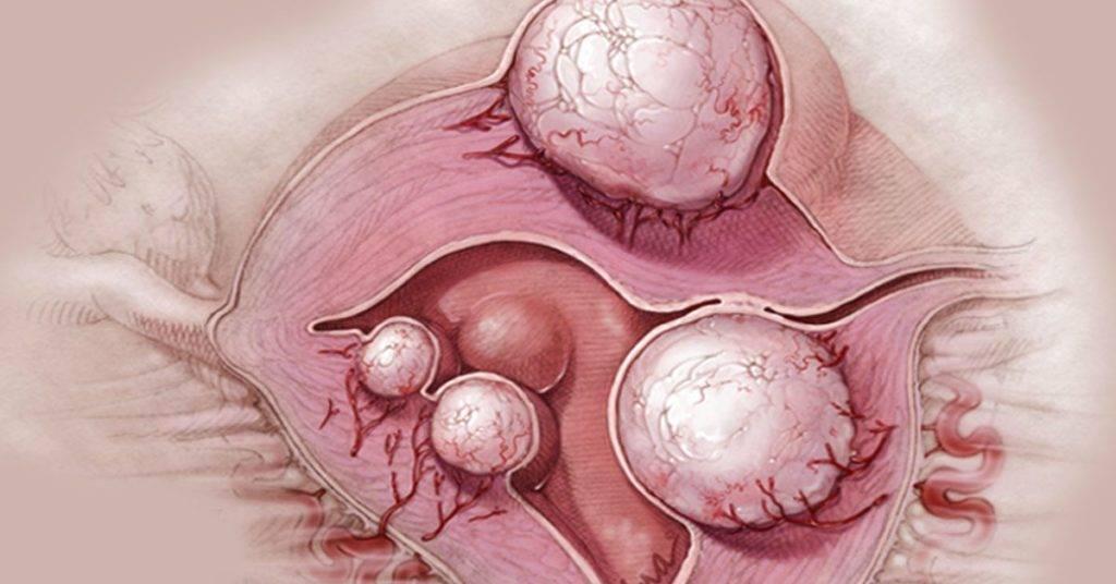 Фолликулярная киста яичника: симптомы и лечение