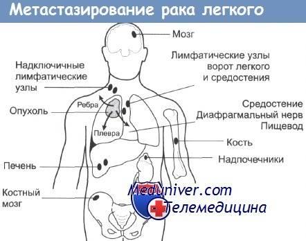 Метастазы