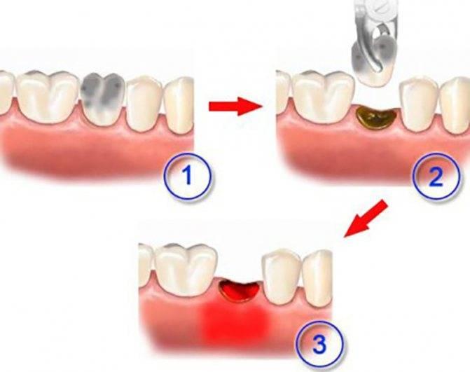 Неприятный запах изо рта после удаления зуба: причины и лечение