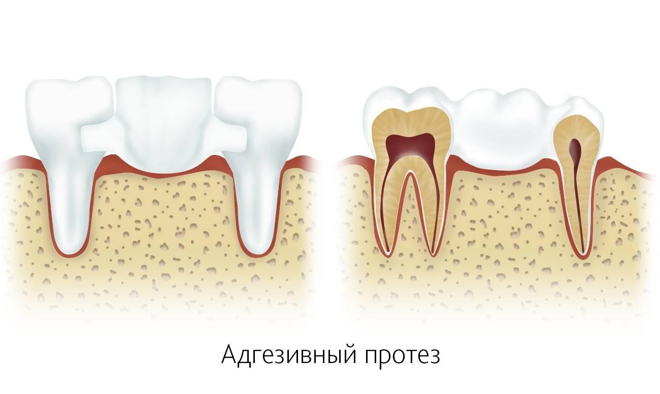 Зубной мост: виды, какой лучше, как делают и ставят, сколько стоит мостовидный протез