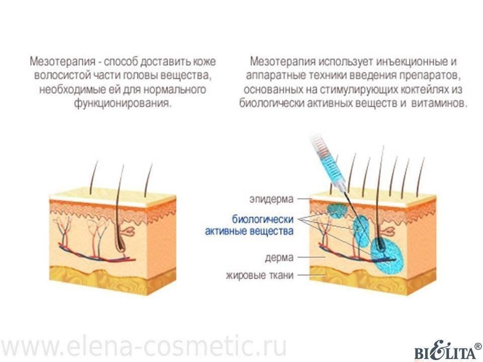 Что лучше выбрать: инъекционную или лазерную биоревитализацию